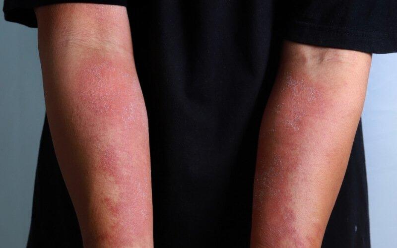 Malattie dermatologiche