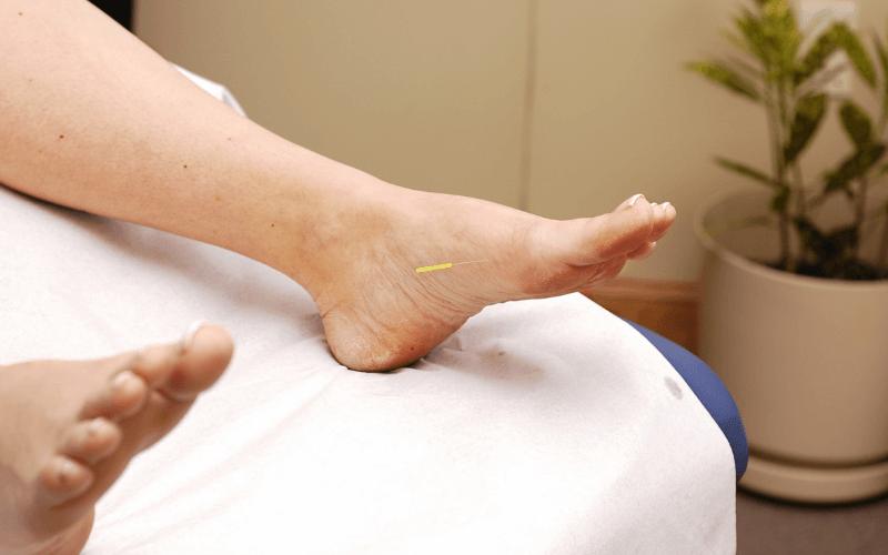 agopuntura piedi