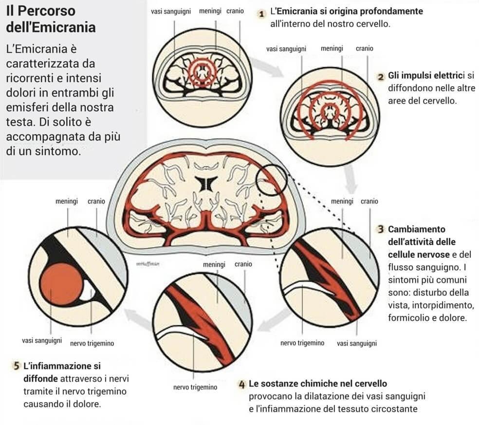percorso dell'emicrania